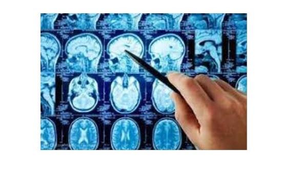 Научно-практическая конференция «Два взгляда на нейродегенерацию: позиция невролога и рентгенолога», г. Якутск, 2–3 сентября 2021 г.